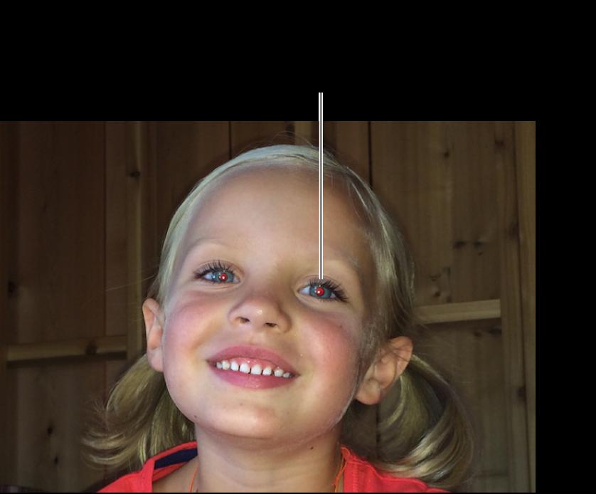 Pointeur Yeux rouges placé sur une pupille rouge.