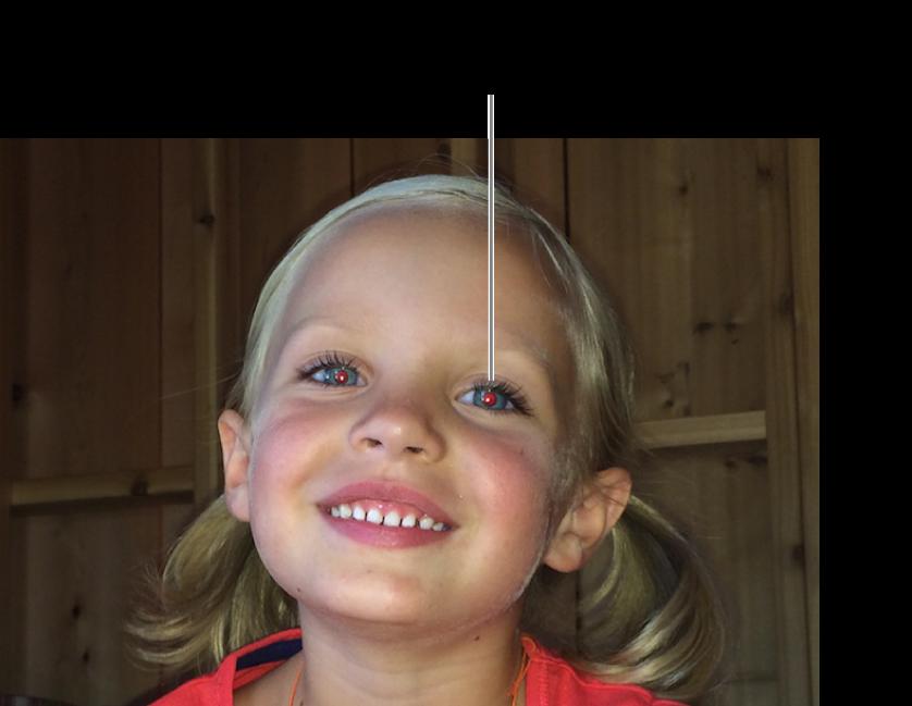 Puntero de corrección de ojos rojos colocado sobre una pupila roja.