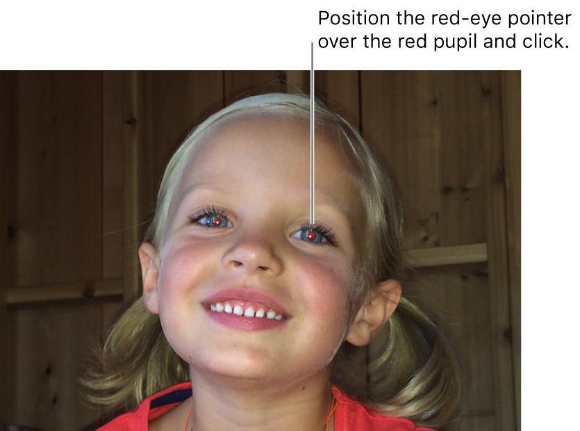 A photo of a child showing a red pupil.