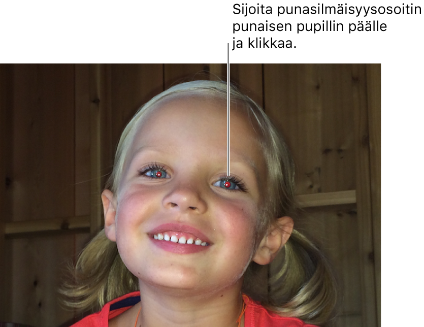 Kuva lapsesta, jolla on punainen silmä.