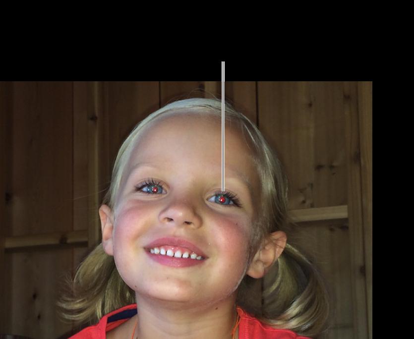 La photo d'un enfant avec une pupille rouge.