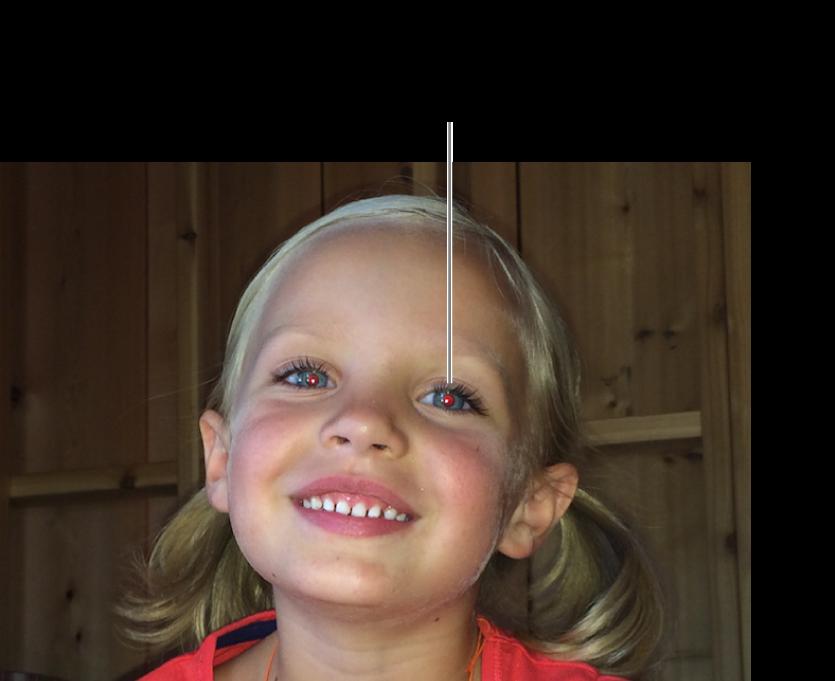 Egy fotó egy gyermekről piros pupillával.