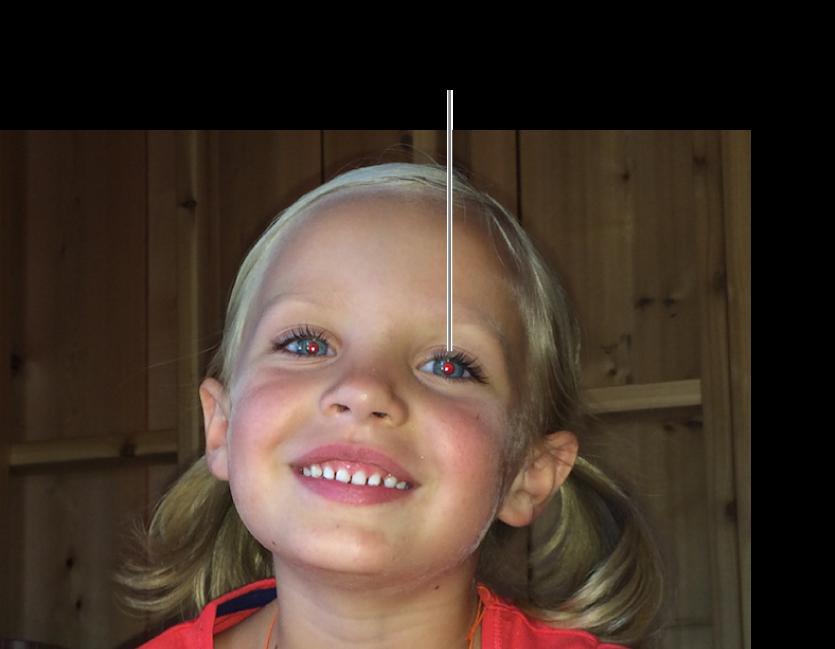 Een foto van een kind met een rode pupil.