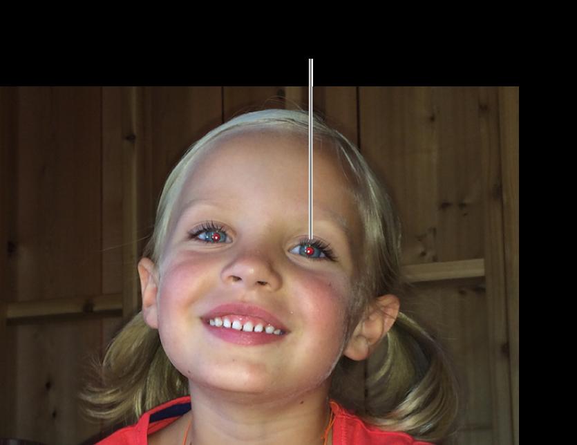 Uma foto de uma criança que mostra pupilas vermelhas.