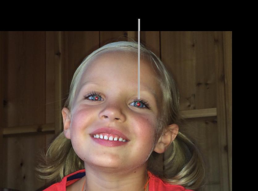 Uma fotografia de uma criança com uma pupila vermelha.