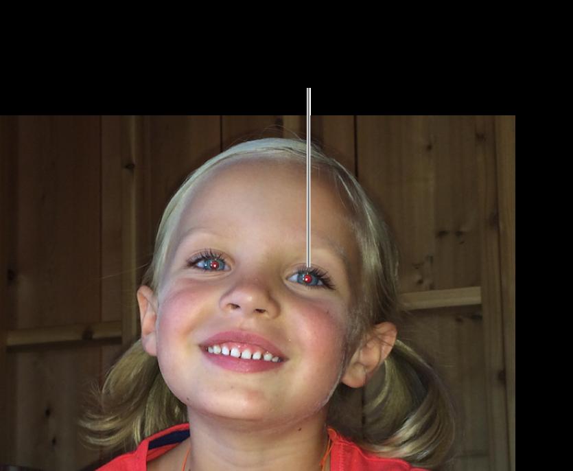 Kırmızı göz bebeği gösteren bir çocuğun fotoğrafı.