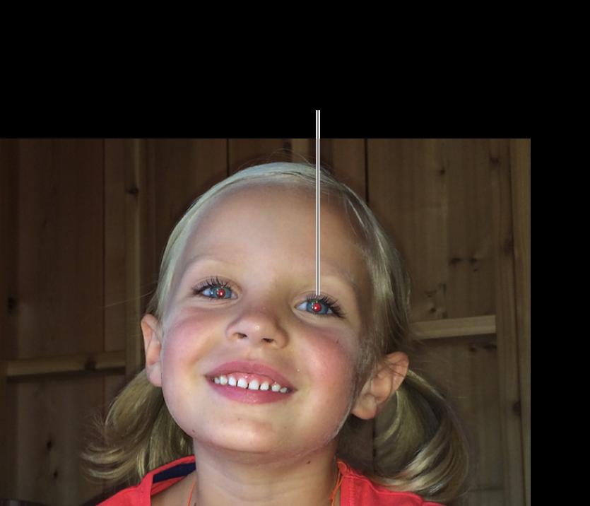 Фотографія дитини з червоною зіницею.