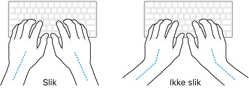 Hender plassert over et tastatur som viser riktig og feil stilling for håndledd og hender.