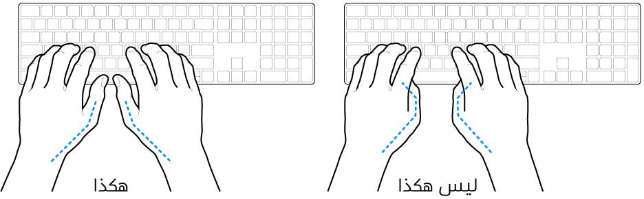 يدان موضوعتان على لوحة مفاتيح، ويظهر الوضع الصحيح وغير الصحيح للإبهامين.