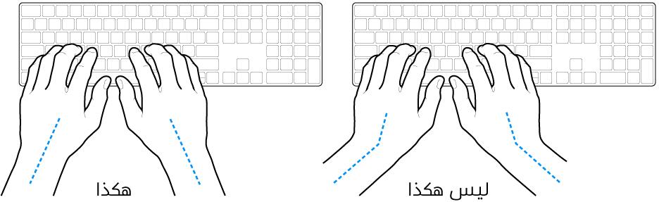 يدان موضوعتان على لوحة مفاتيح، وتظهر المحاذاة الصحيحة وغير الصحيحة للمعصم واليد.