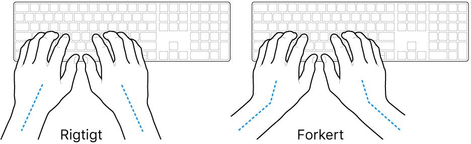 Hænder anbragt over et tastatur med rigtig og forkert position af håndled og hånd.