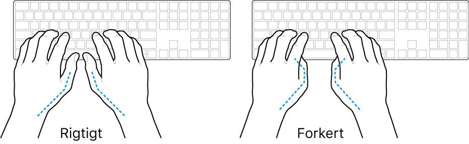 Hænder anbragt over et tastatur med rigtig og forkert position af tommelfingre.