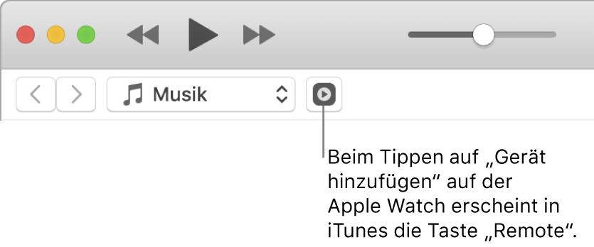 """Die Taste """"Remote"""" wird in iTunes angezeigt' während du versuchst, die Mediathek zur AppleWatch hinzuzufügen."""