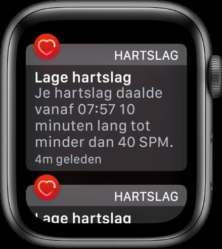 Het scherm 'Hartslagwaarschuwing' met de melding dat er een lage hartslag is gedetecteerd.