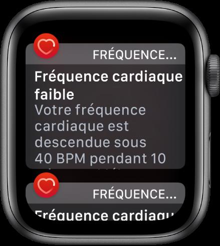 Un écran d'alerte de fréquence cardiaque indiquant qu'une fréquence cardiaque faible a été détectée.