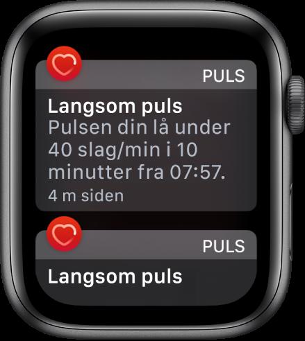 En pulsvarsel-skjerm som viser at langsom puls er registrert.