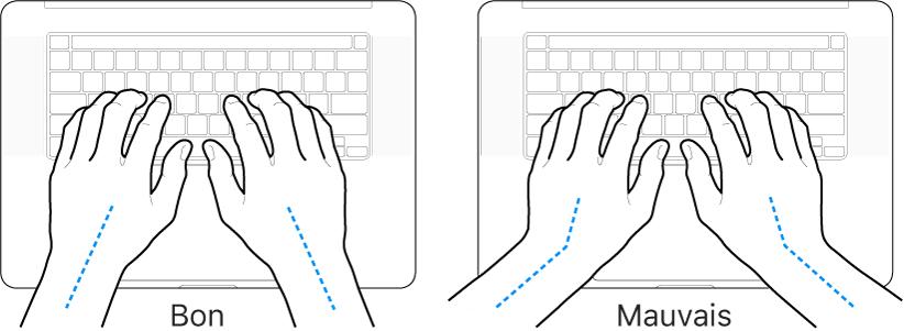 Mains placées sur un clavier, montrant le bon et le mauvais alignement des poignets et des mains.
