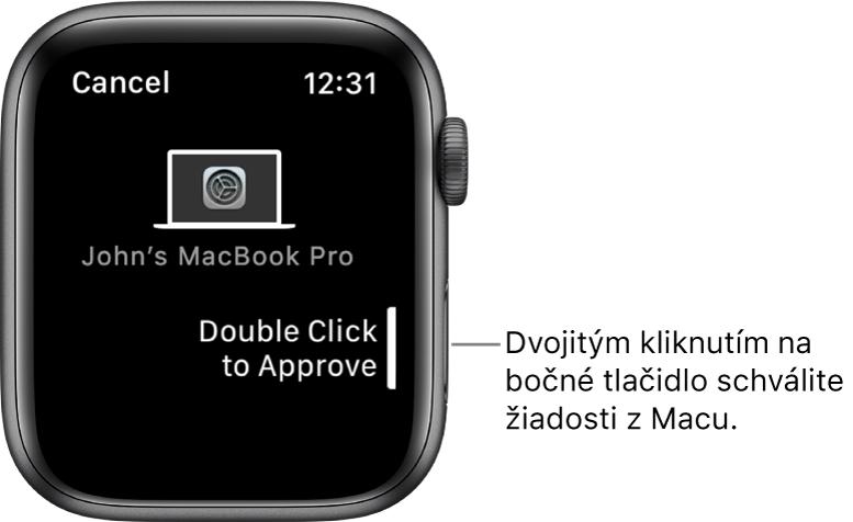 AppleWatch so žiadosťou oschválenie zMacBookuPro.