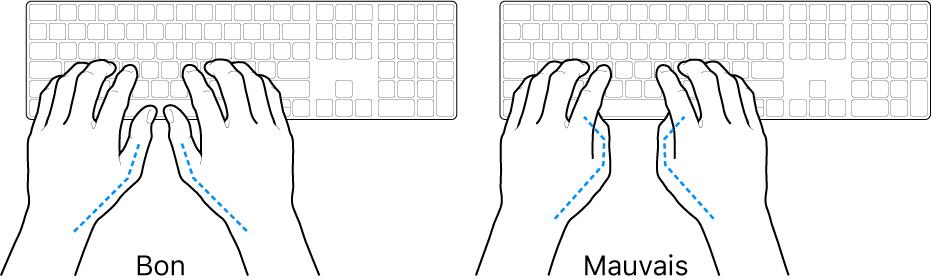 Mains placées sur un clavier, montrant la bonne et la mauvaise position des pouces.