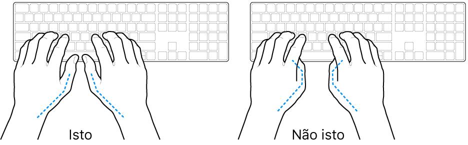 Mãos posicionadas sobre um teclado, mostrando os alinhamentos correto e incorreto dos polegares.