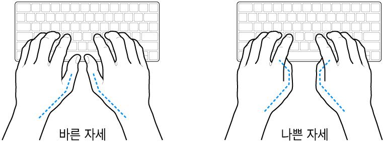 엄지손가락의 바른 위치와 잘못된 위치를 보여주는 키보드 위의 손.