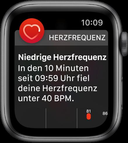 Ein Warnbildschirm mit dem Hinweis, dass eine zu niedrige Herzfrequenz festgestellt wurde.