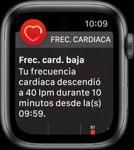 """Pantalla """"Alerta de frecuencia cardiaca"""" indicando que se detectó una frecuencia cardiaca baja."""