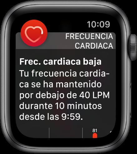 Una pantalla de aviso de frecuencia cardiaca que indica que se ha detectado una frecuencia cardiaca baja.