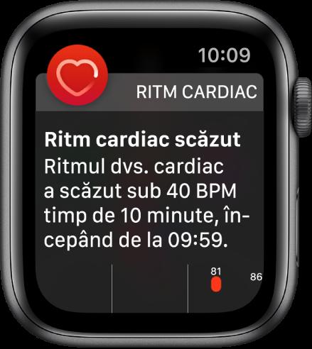 Un ecran Alertă de ritm cardiac, indicând faptul că a fost detectat un ritm cardiac scăzut.