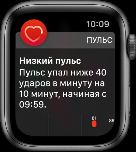 Экран оповещения о пульсе, где указано, что пульс слишком низкий.
