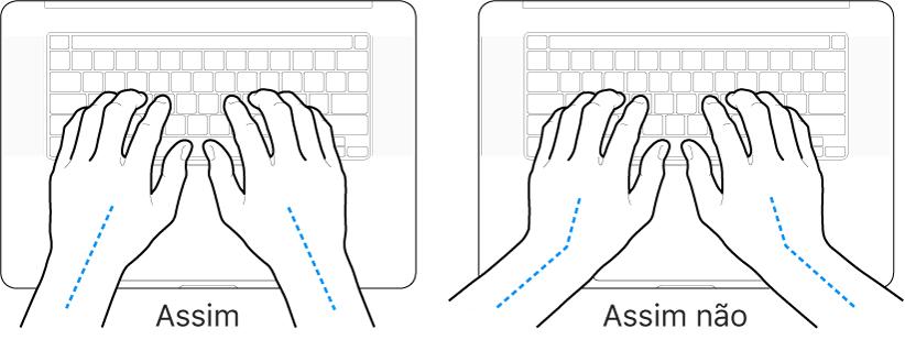 As mãos posicionadas sobre um teclado a mostrar alinhamentos corretos e incorretos das mãos e dos pulsos.