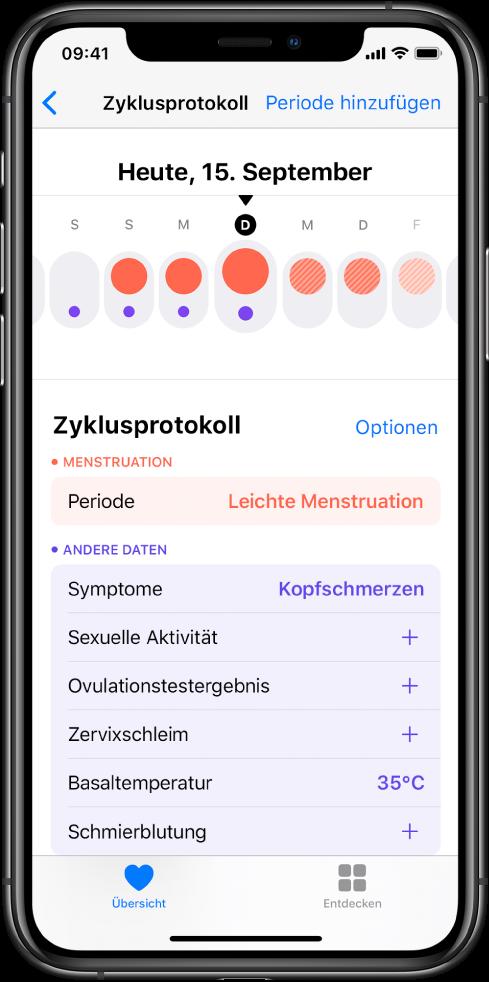 """Der Bildschirm """"Zyklusprotokoll"""" in der App """"Health""""."""