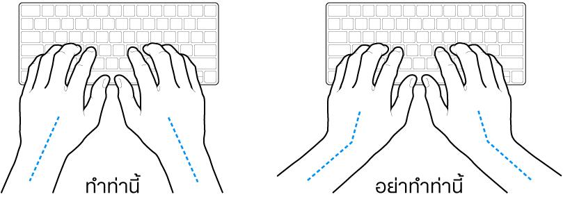 มือวางอยู่เหรือแป้นพิมพ์ แสดงตำแหน่งการวางข้อมือและแขนที่ถูกต้องและไม่ถูกต้อง