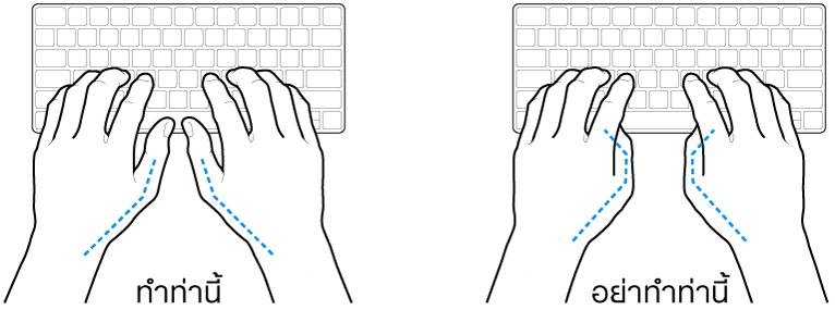 มือวางอยู่เหรือแป้นพิมพ์ แสดงตำแหน่งการวางนิ้วหัวแม่มือที่ถูกต้องและไม่ถูกต้อง