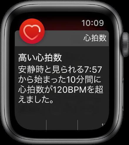 「高い心拍数」画面。10分間の安静時に心拍数が120 BPMを超えたことを知らせる通知が表示されています。