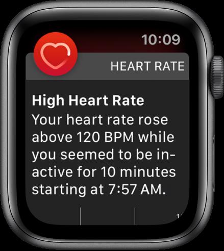 Didelio širdies plakimų skaičiaus ekranas su pranešimu, kad jūsų širdies plakimų skaičius yra didesnis kaip 120dūžių per minutę, jums 10minučių būnant neaktyviems.