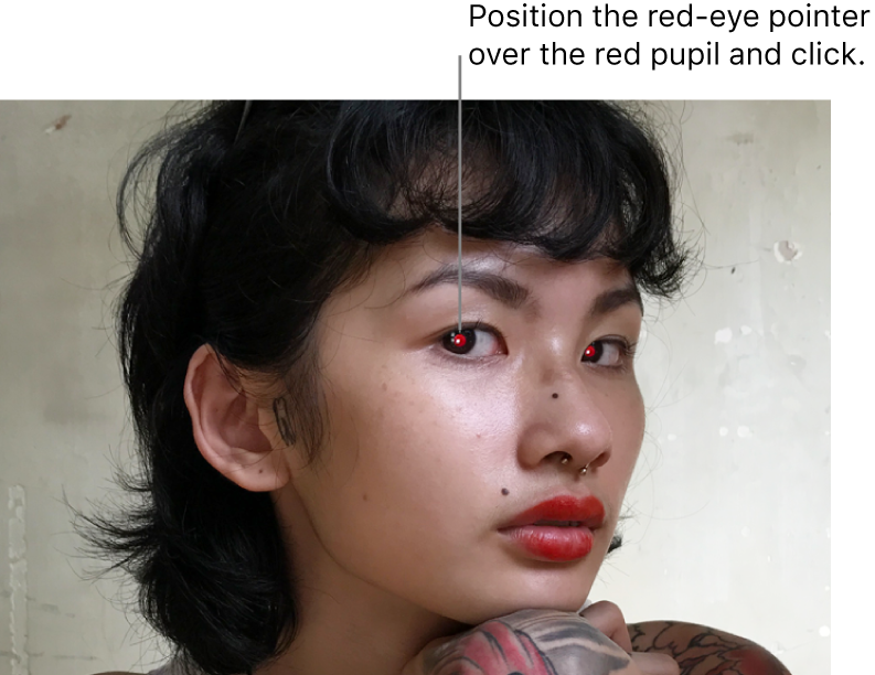 A photo of a person showing red pupils.