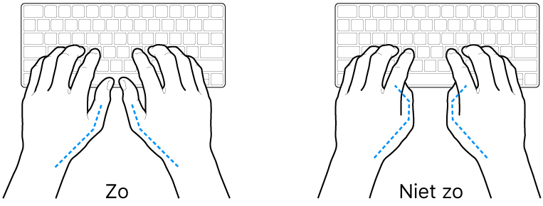 Handen boven een toetsenbord, waarbij de goede en verkeerde stand van de duimen wordt aangegeven.