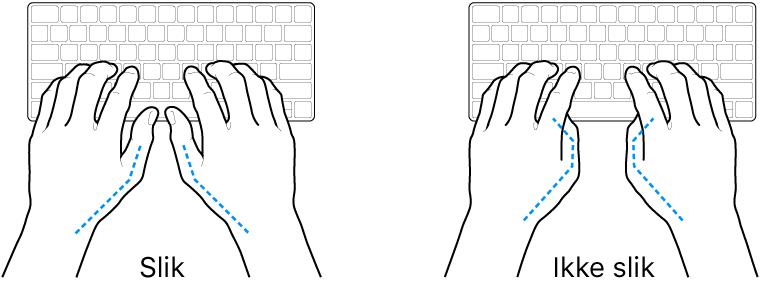 Hender plassert over et tastatur som viser riktig og feil tommelstilling.
