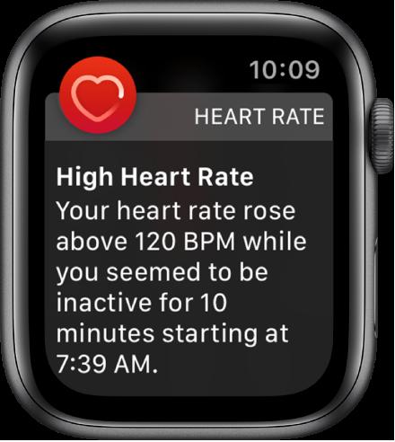 Предупреждение за сърдечен ритъм, показващо висока пулс.