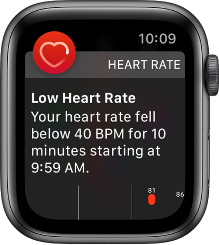 A Heart Rate Alert screen indicating that a low heart rate has been detected.