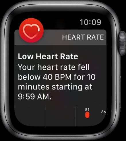 """Ekranas """"Heart Rate Alert"""", nurodantis, kad nustatytas retas širdies ritmas."""